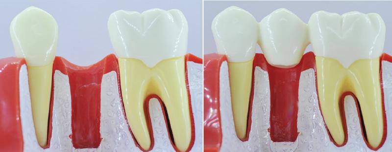 Comment remplacer une dent absente ?